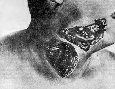 Drawing of Dr. King's Wound